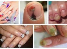 peligros-de-las-uñas-acrilicas