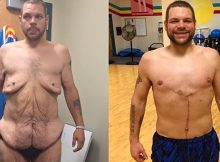 104-Ronnie-Brower-perde-quase-200kg-cirurgia-reducao-de-estomago-bariatrica-03
