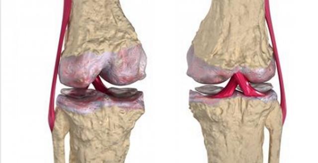 Los medicos lo usan pero no lo revelan; remedio poderoso regenera los cartílagos de rodillas y caderas hasta en 20 años