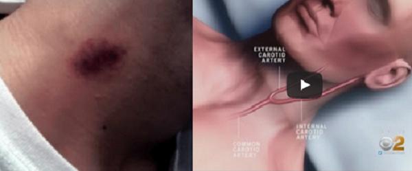 Poner Atención a esto! Este joven sufrió un infarto por esta marca en su cuello: Los doctores están explicando lo que sucedió para que usted pueda cuidarse.