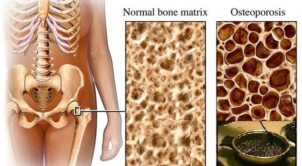 Este veneno está destruyendo tus huesos y lo sigues consumiendo: Mira lo que hace a los 10 minutos de consumirlo, luego a los 20 minutos y después a los 40. Este veneno ataca en silencio