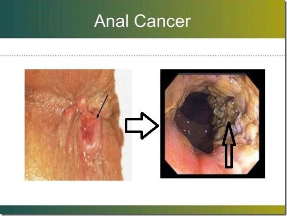 LEA ESTA PUBLICACIÓN, ES IMPORTANTE: Esta es la razón por la cual muchas personas sufren de cáncer anal y pocas personas lo saben