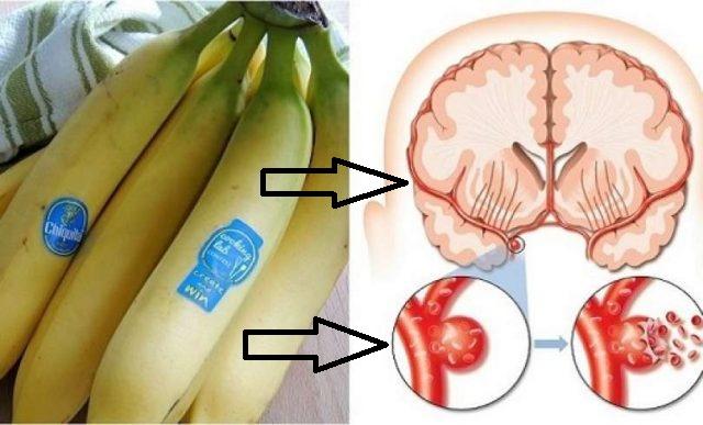 Las personas lo hacen por falta de conocimiento; pero mira como impacta el plátano maduro el corazón, y el cerebro cuando lo comes mas de dos veces al dia