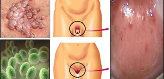 Nueva infección de transmisión sexual se está propagando… Mira de que modo usted puede contraerla