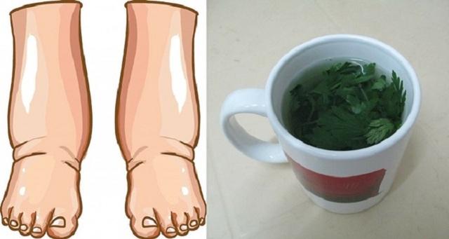 Este potente té casero curará las piernas hinchadas en pocos días. Es el remedios mas utilizado por años y es mas fuerte que los medicamentos.