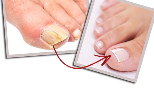 Traté muchas formas para eliminar los hongos de mis uñas, hasta que probé esto ¡ya ni me acuerdo!