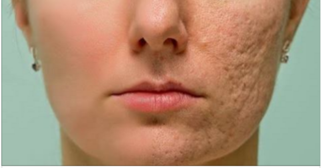 Frote esto en cualquier cicatriz, arruga o mancha que tiene su piel y mira como desaparecen en cuestión de minutos! Incluso los médicos están sorprendidos