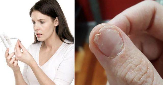 Come esto y evitaras la perdida del cabello, uñas quebradizas y te ayudara a conciliar el sueño si no esta durmiendo bien.