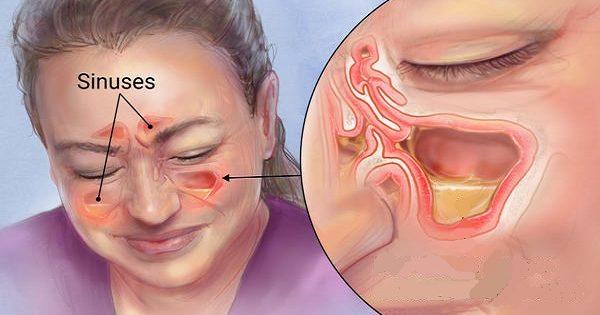 Mata la infección de la sinusitis en 20 segundos con este método simple y común de la casa!