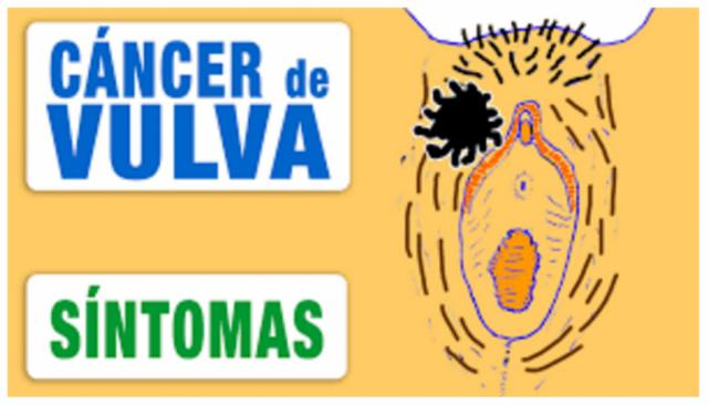 Con estas simple señales podría detectar el cáncer de vulva, sin tener que ir al medico. Apunta