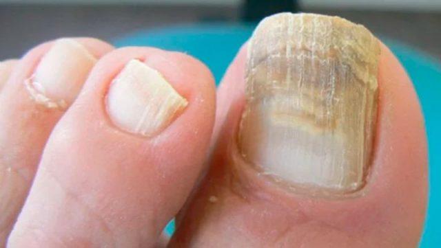 """Le dicen la """"Bomba"""" por que elimina las manchas amarillas, infecciones y hongos de las uñas!"""