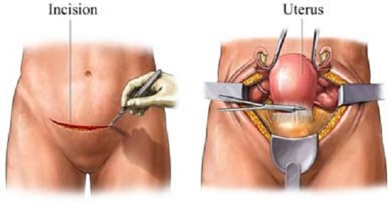 Esto limpia y elimina los quiste de los ovarios y útero en tiempo récord, demasiado eficaz este remedio.