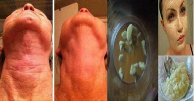 Médicos cirujanos están aterrados con receta que elimina la piel arrugada y flácida..