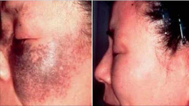 frota esto en tu piel y en 72 horas las manchas pecas y arrugas se desvanecerán